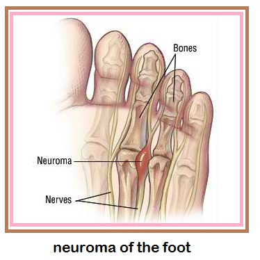 neuroma foot pain