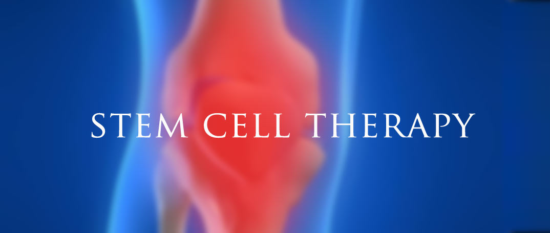 stem cell naples